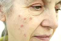 old woman face rash